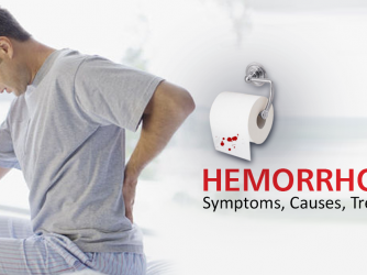 Haemorrhoid Signs And Symptoms Exposed